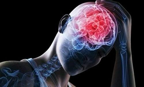 腦血管問題