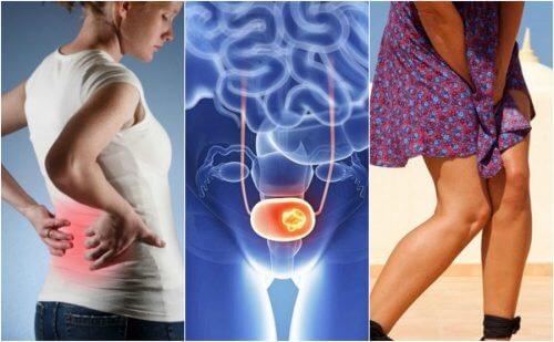 請注意這7種膀胱癌徵兆