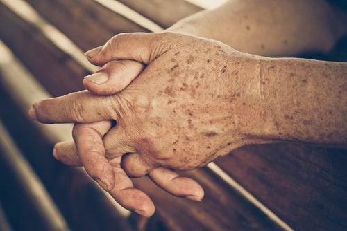 四個預防老人斑的家庭療法