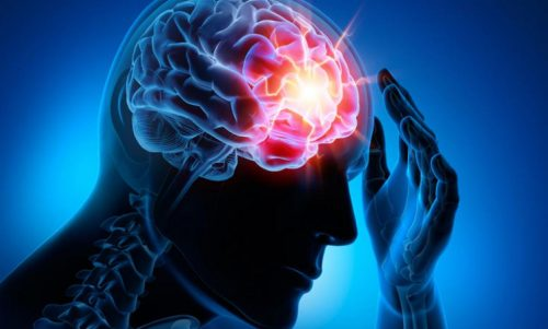 四種最常見的腦血管疾病