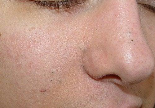 3種去除黑頭粉刺的自製去角質劑