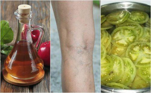 用醋和青蕃茄對抗靜脈曲張