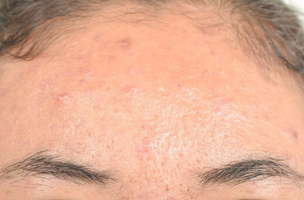 脂漏性皮炎的有效天然療法