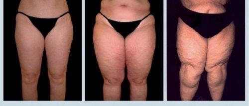 脂肪水腫:你應該認識的一種嚴重疾病