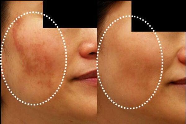 用這5種自製面膜減少皮膚變色