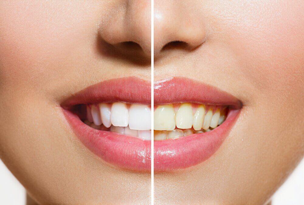 牙齒美白的天然方法