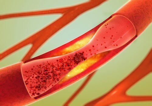 12種清潔動脈的最佳食物