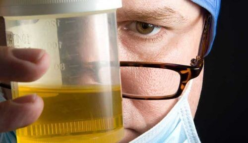 尿液出現異味的8個原因