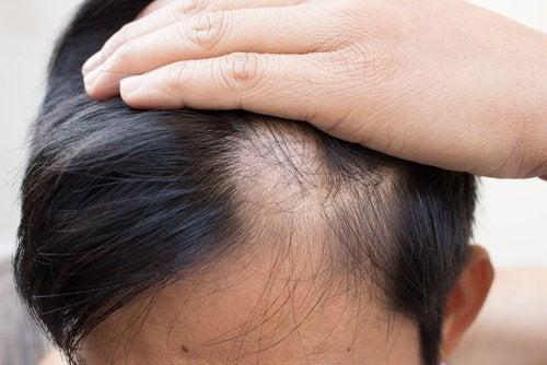 禿髮的6種自然療法