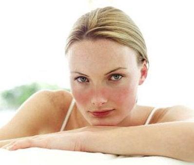 什麼是全身性紅斑狼瘡?