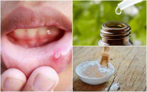 用這六種自然療法緩解口腔潰瘍