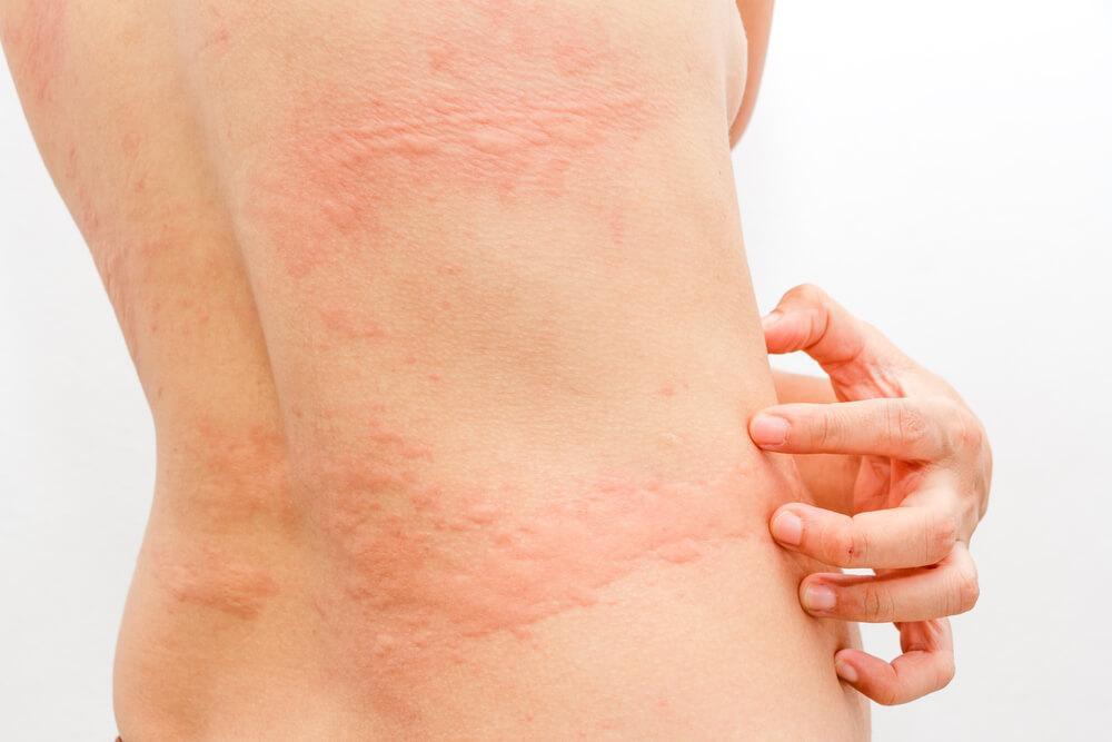 三種對付蕁麻疹的自然療法