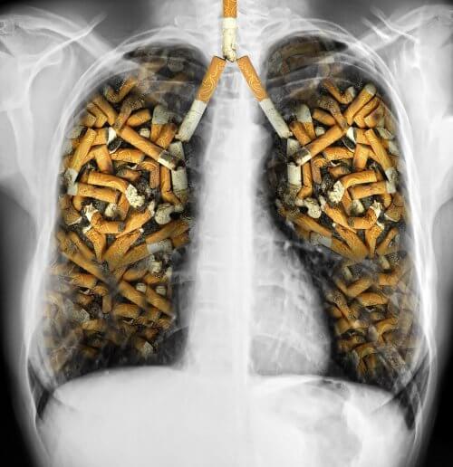 充滿菸蒂的肺