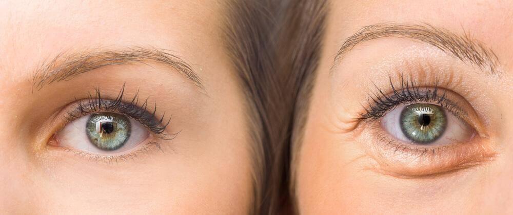 用這五種天然成份緊實你下垂的眼皮
