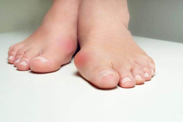 協助對抗拇趾外翻的五種草本療法