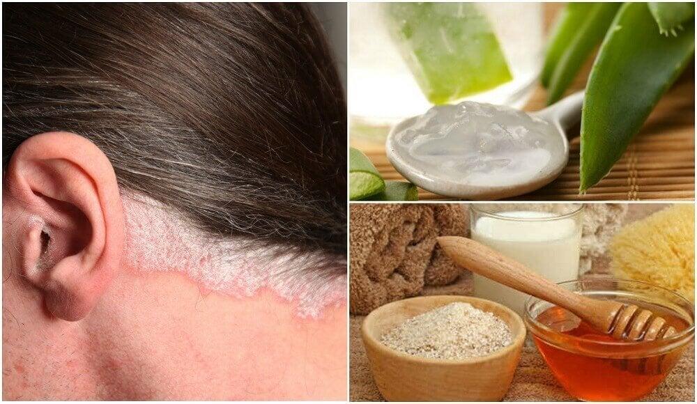 對付頭皮乾癬的5種居家療法