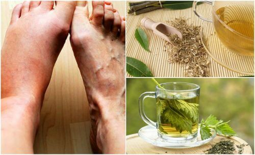 降低尿酸的5種居家療法