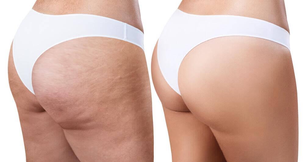 用這些簡單又有效的居家療法擺脫橘皮組織