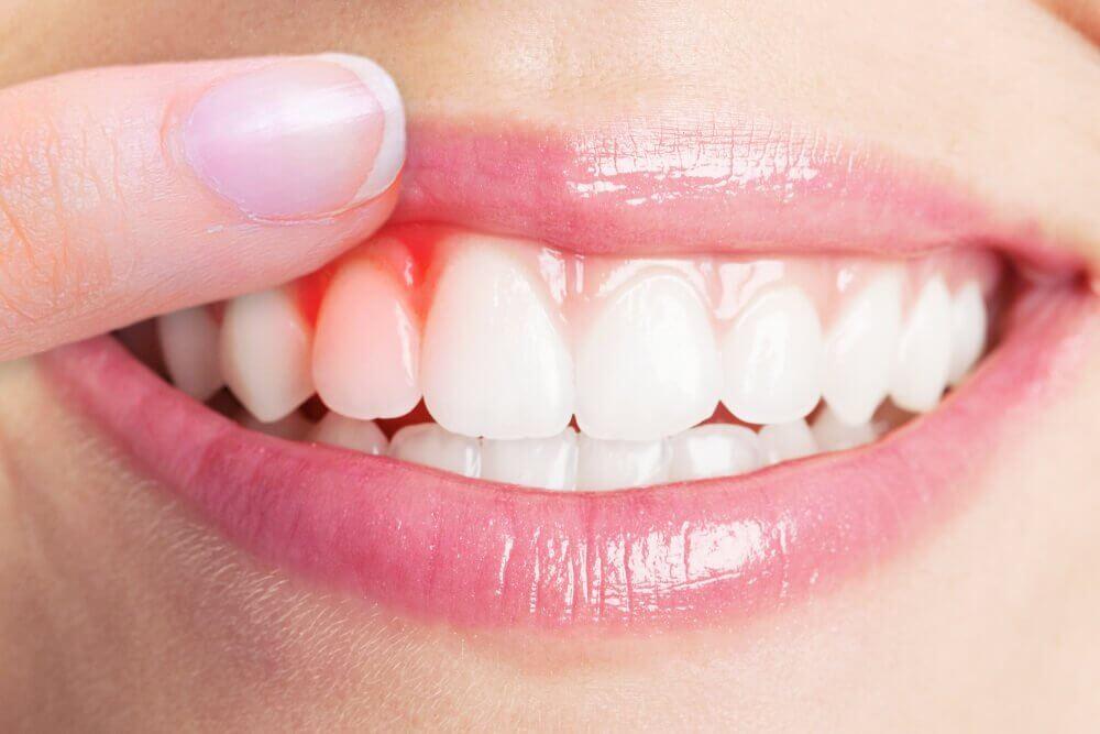 治療牙齦炎最厲害的5種療法