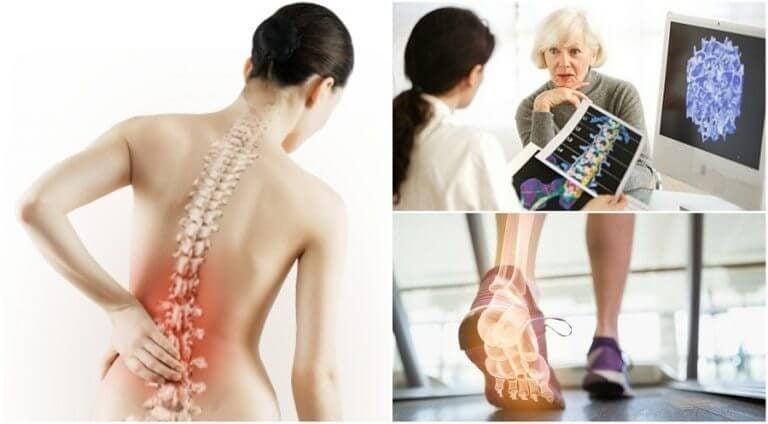 關於骨質疏鬆症你需要了解的6個事實