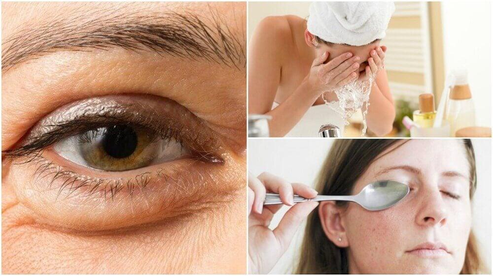 6種減少眼袋的自然方法