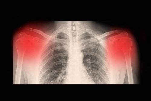 關於骨關節炎你需要瞭解的資訊