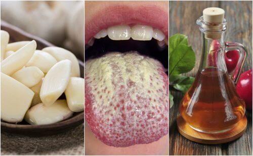 控制念珠菌生長的6種自然療法