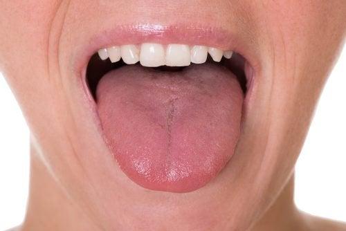 舌癌的五個主要症狀