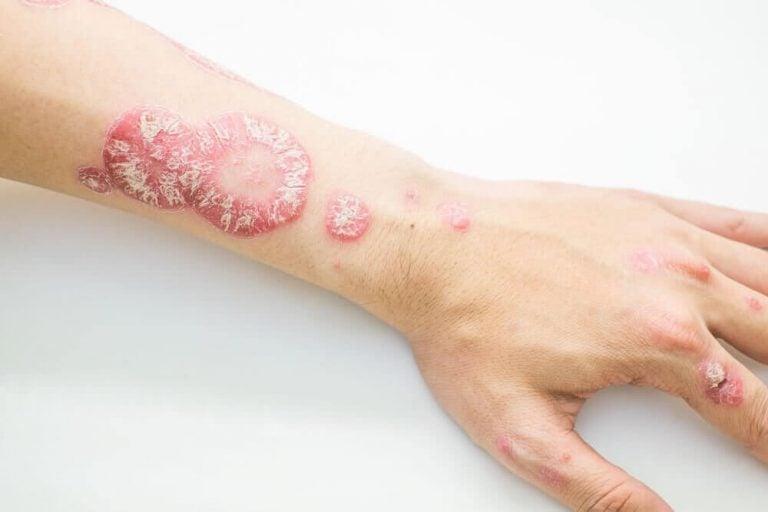 用這些自然療法對抗乾癬