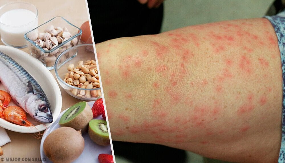 了解最常見的食物過敏為何,以及良好的替代方案