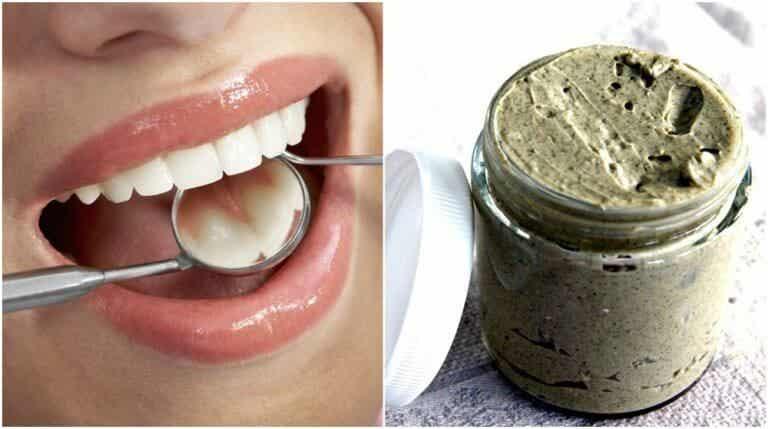 如何100%天然地預防及治療蛀牙
