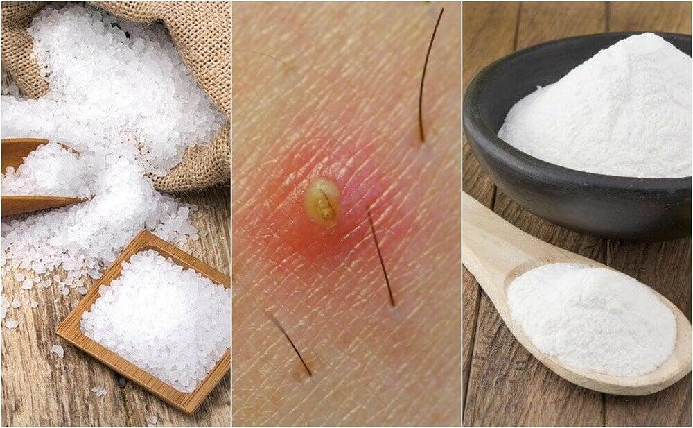 毛髮內生的5種天然解方
