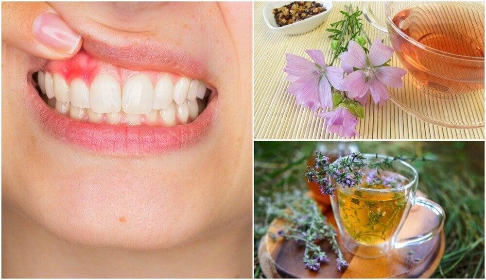 治療牙齦炎的5種自然療法