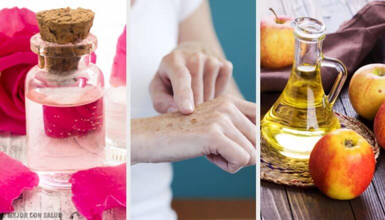 8種天然淡化手上曬斑的方法