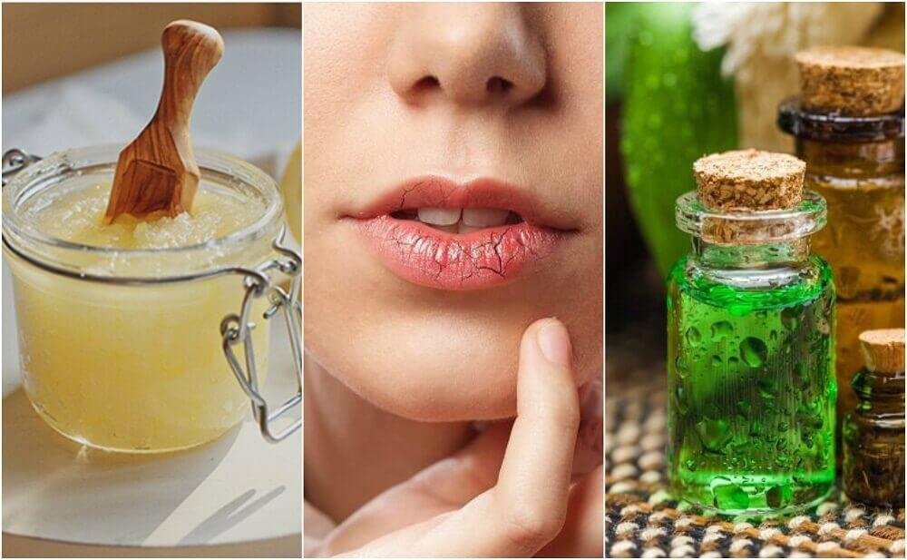 如何預防和治療嘴唇乾裂