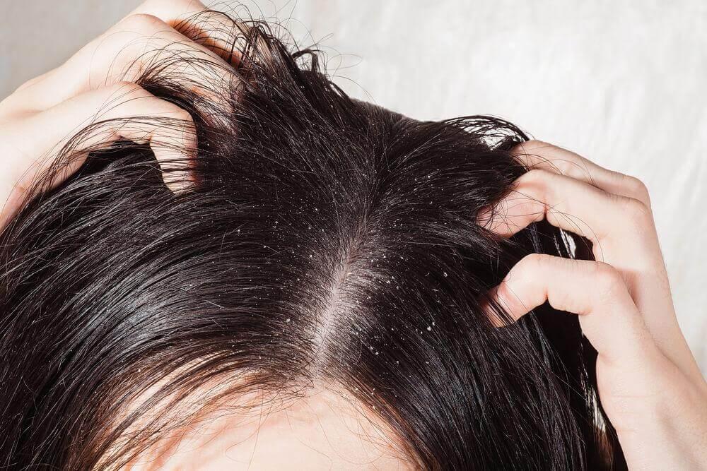 6種對抗頭癬的最佳療法