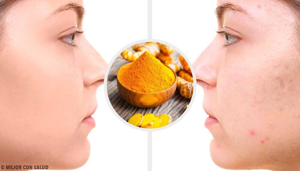 對付痘疤的5種薑黃面膜
