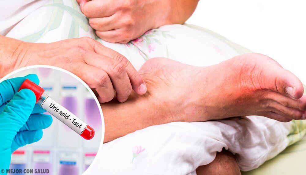 尿酸高的5種常見成因