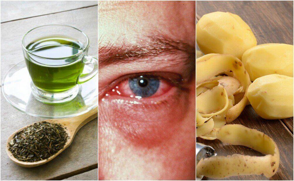 眼睛紅的8種最佳居家療法