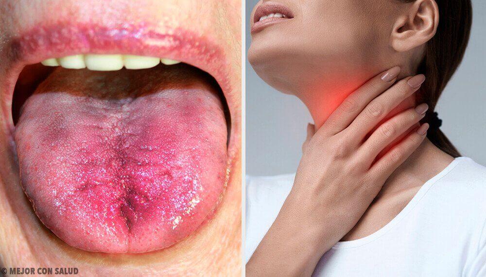 6種知道你的喉嚨裡是否有斑塊的方法