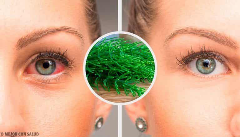 以天然方式對抗紅眼症的7項建議