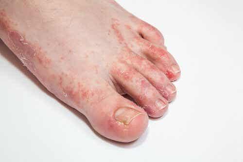 治癒皮膚真菌的15種療法
