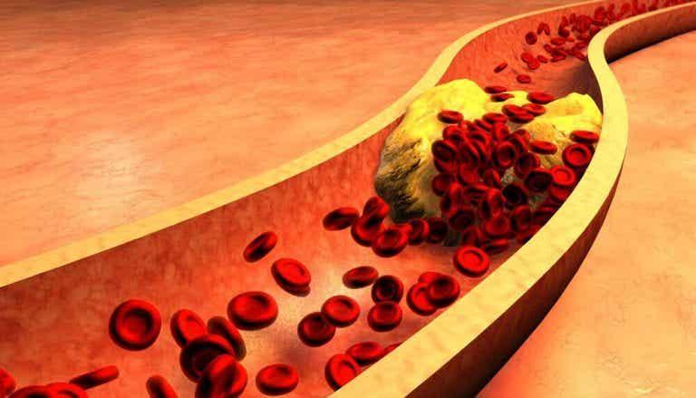 清潔動脈的配方--金絲雀虉草籽與肉桂水