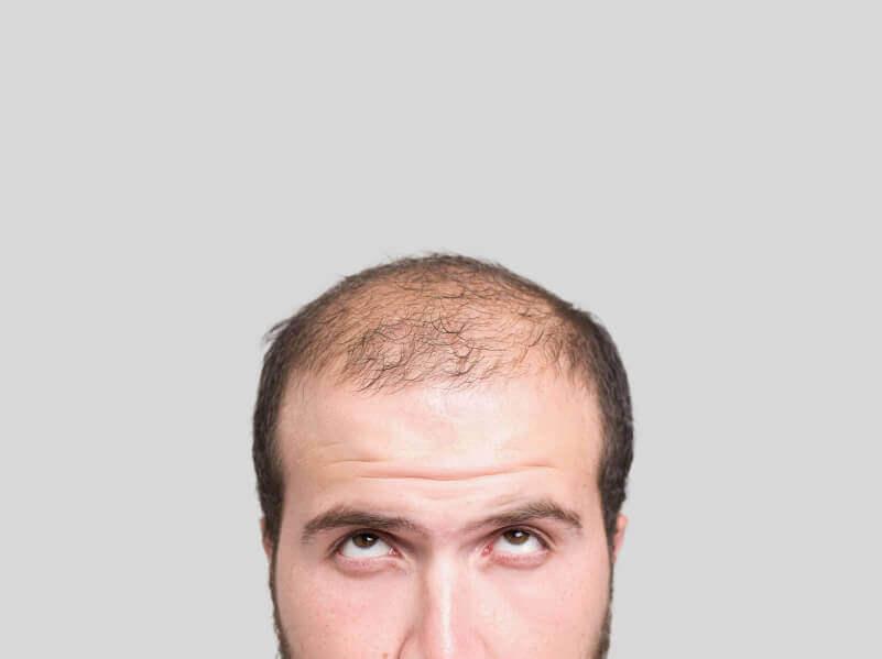 治療禿頭的三種自然療法