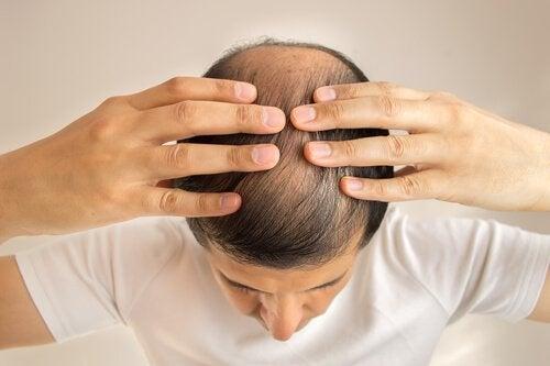 禿頭 (2)