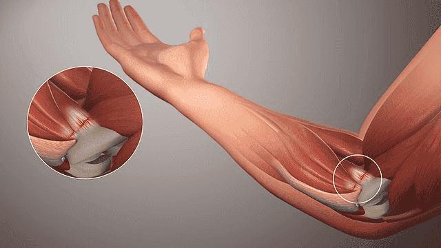 肌腱炎的天然解決方案