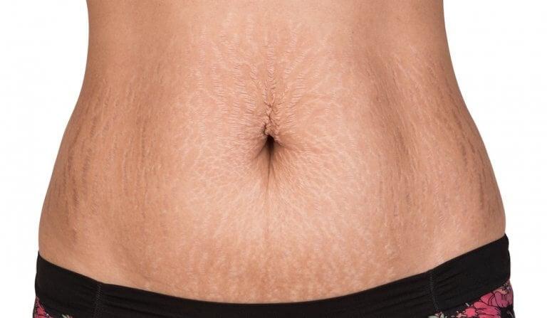 自然療法對抗肥胖紋