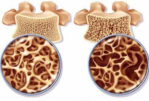 如何準備富含鈣的配方,用以預防骨質疏鬆症