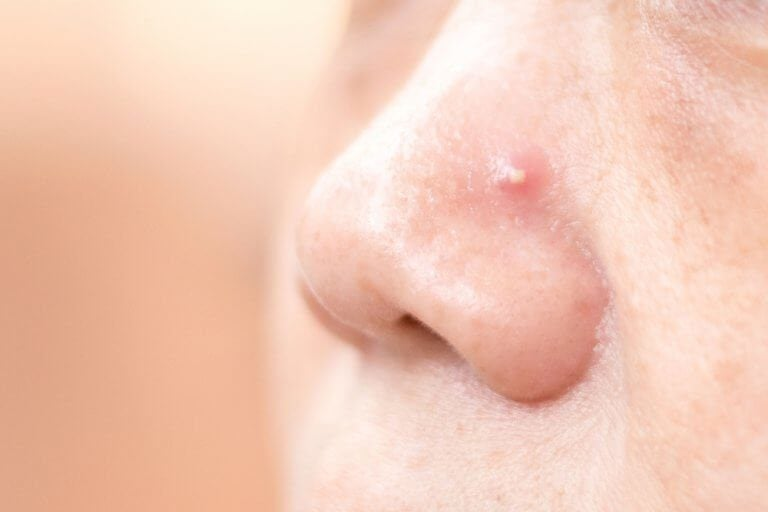 用這4種自製配方擺脫鼻子上的痘痘