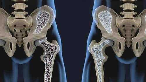 六種幫助預防骨質疏鬆症的飲食技巧